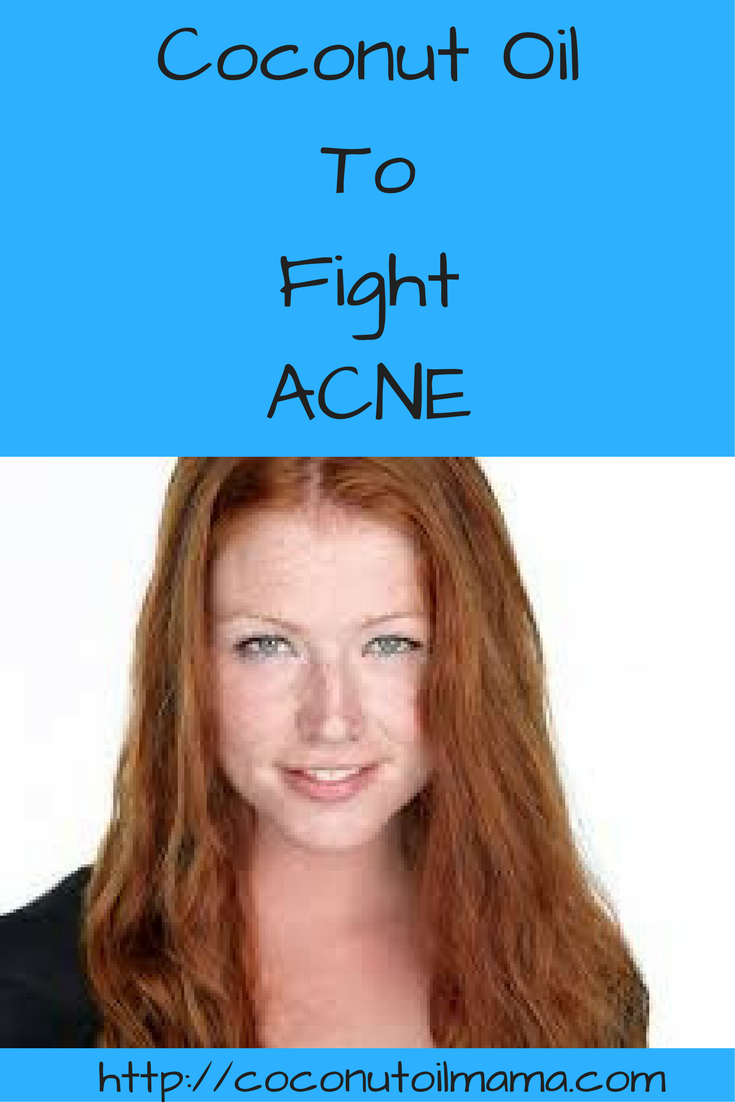coconut oil for acne -